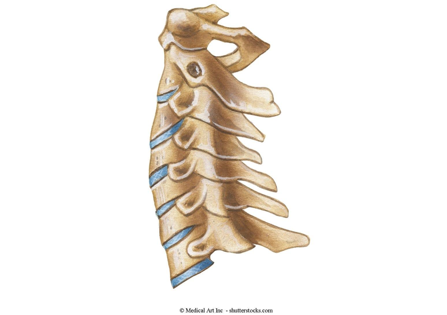 Spondylarthrose oder Spondylose