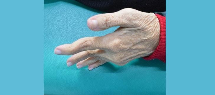 Symptome der rheumatoiden Arthritis