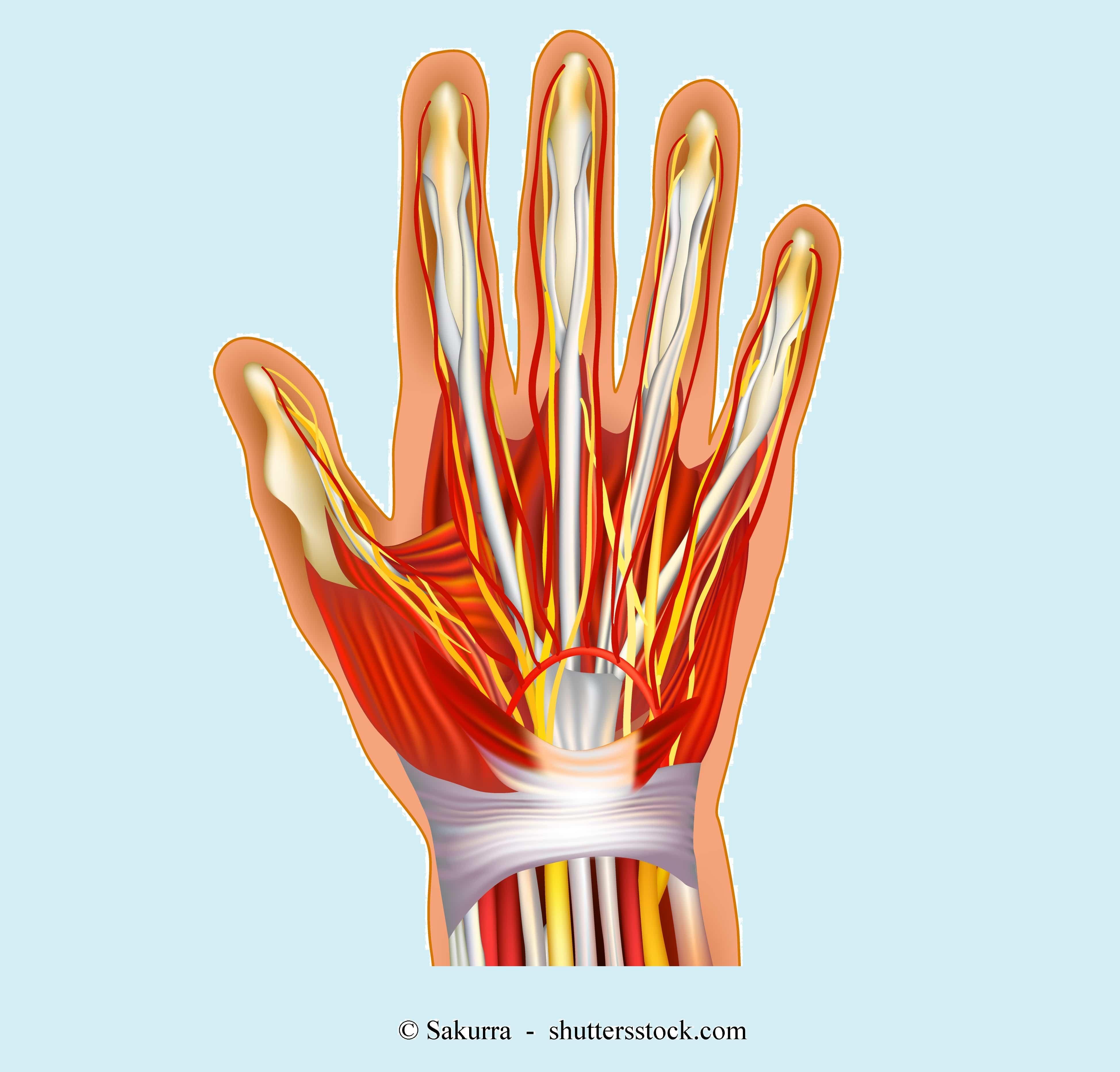 Taube Finger Taube Hände Karpaltunnelsyndrom Rechte Linke Nacht