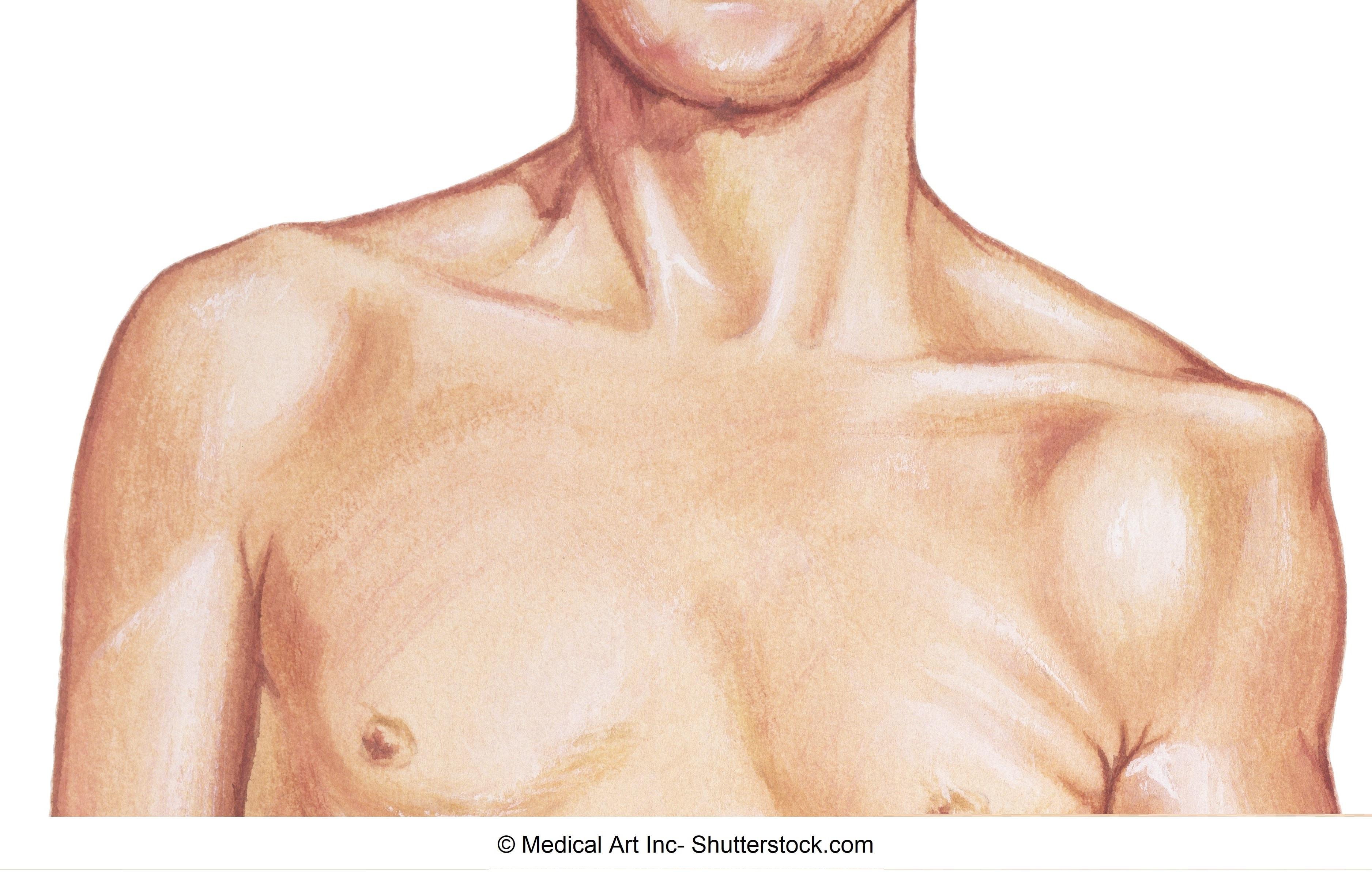 Therapie der Schulterluxation