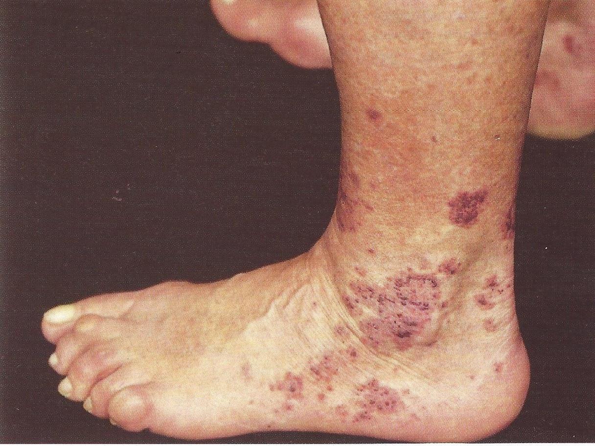 Vaskulitis: Arten (kutane, Purpura, leukozytoklastische, urticarial)