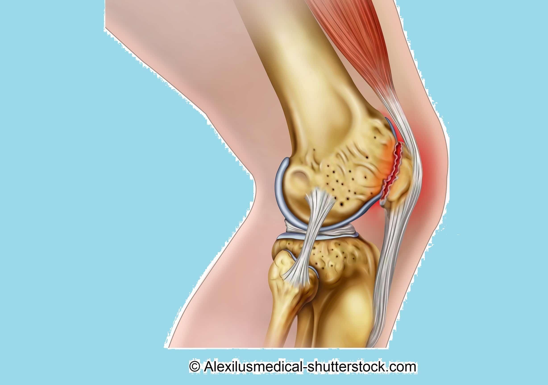 Femoropatellares Schmerzsyndrom oder Chondropathia patellae