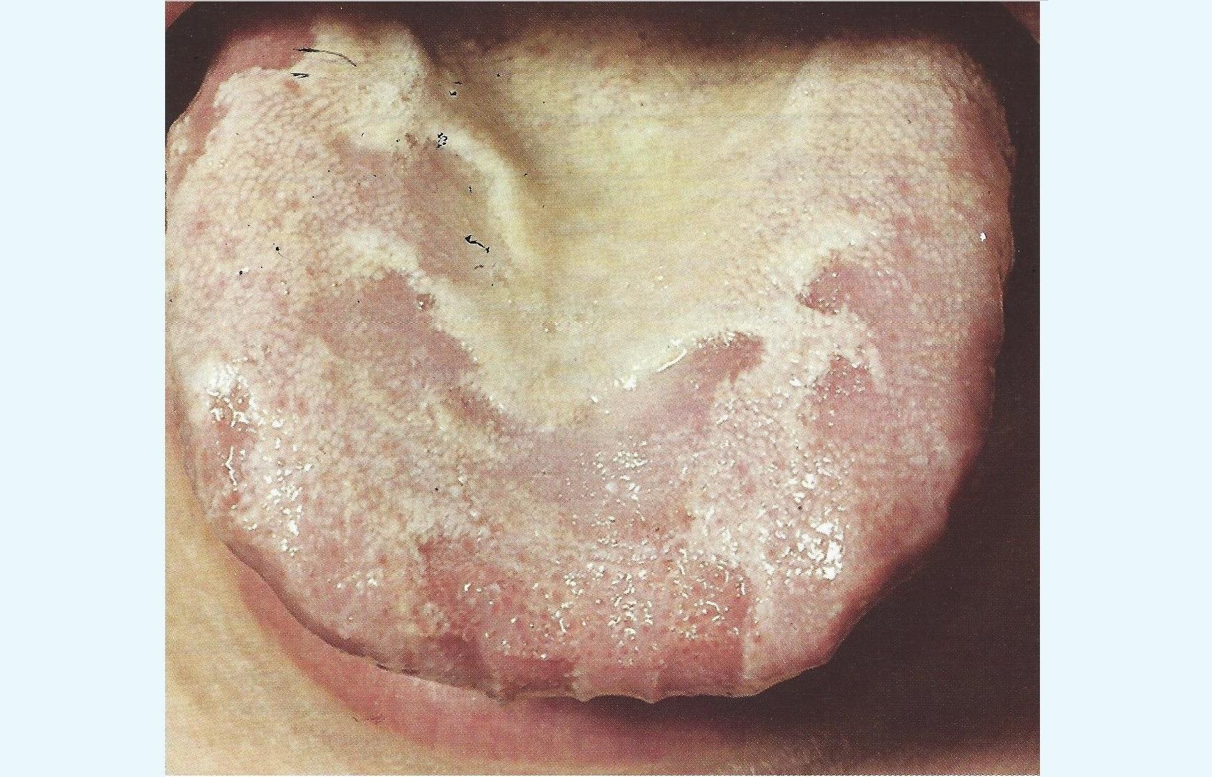 Weißer Zungenbelag